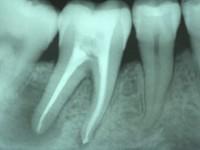 Endodonzia Chirurgica