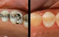 Odontoiatria Conservatrice