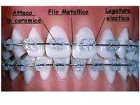 Ortodonzia tradizionale e invisalign