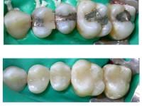 Rimozione Amalgama Dentale